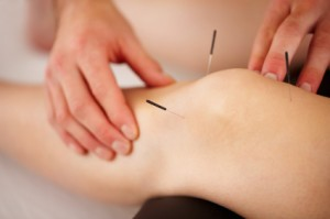 vermont acupuncture therapy